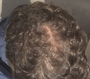 Follicle challenge: James' crown after eight years' ongoing treatment to reverse and ward off hair loss